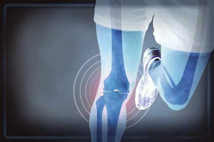 The Link Between Running and Arthritis